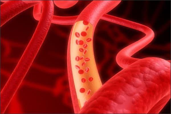 Cách làm lưu thông máu tại nhà hiệu quả cao
