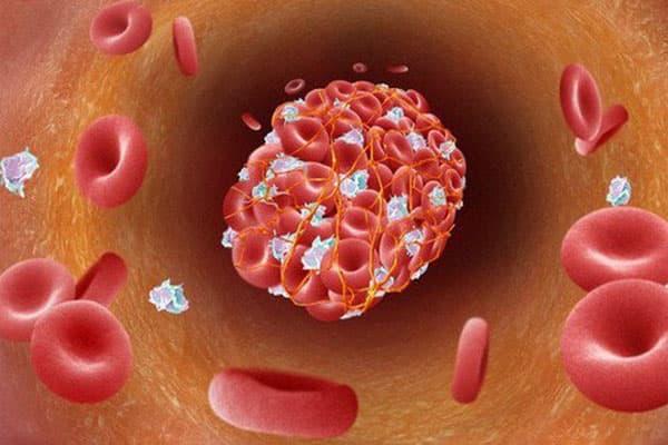 chống huyết khối là gì
