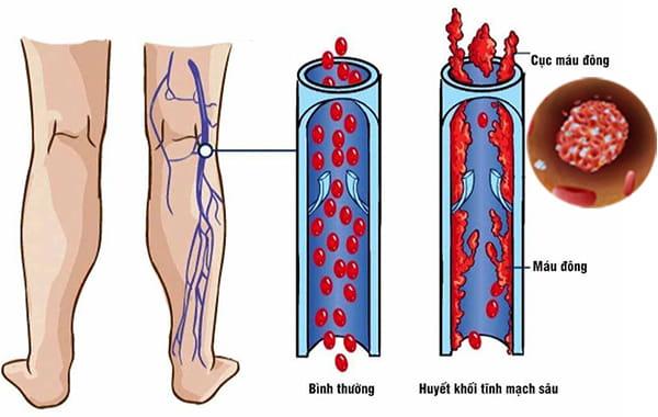 Các sản phẩm chống huyết khối hiệu quả từ Nhật Bản